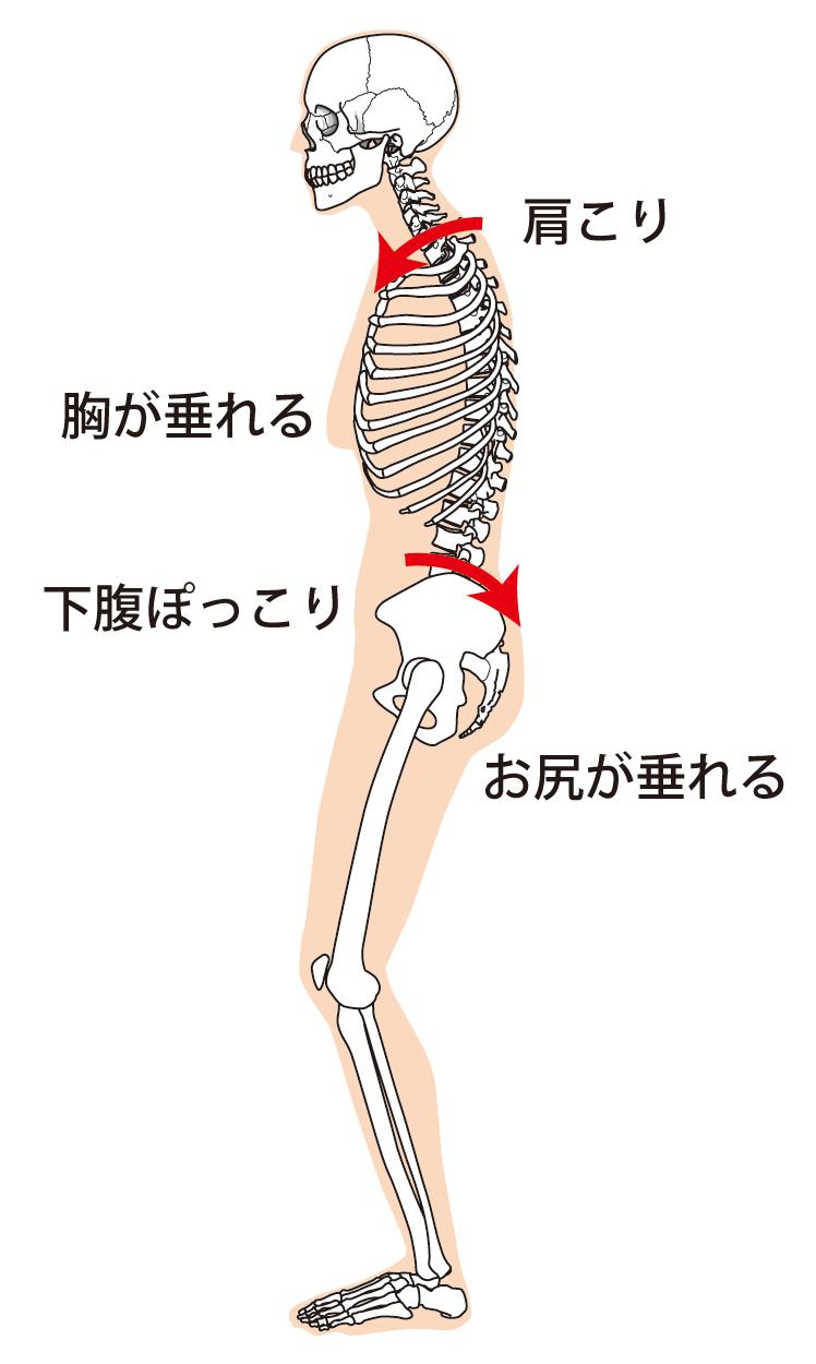 骨盤の傾き2